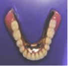 その上に入れ歯がカチッとはまります。