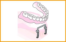 インプラント+総入れ歯