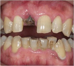 術前 前歯部