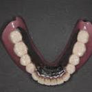 歯は抜かずに根の部分だけ残っており4本の歯の根の上に総義歯を装着します。