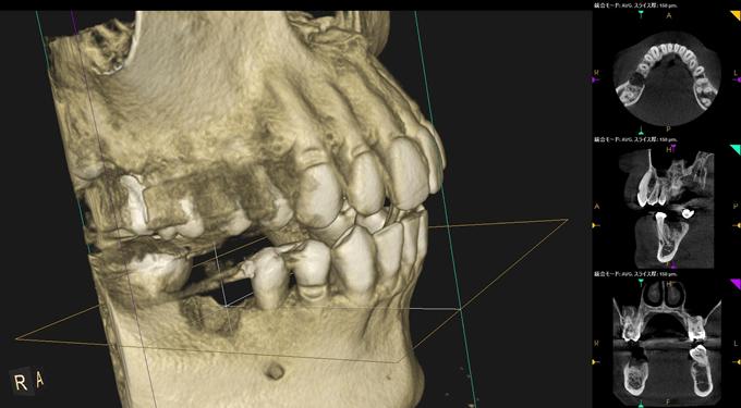 右下第一大臼歯の歯を失ったところに、インプラントが埋入できるか、CTにて診断していきます。
